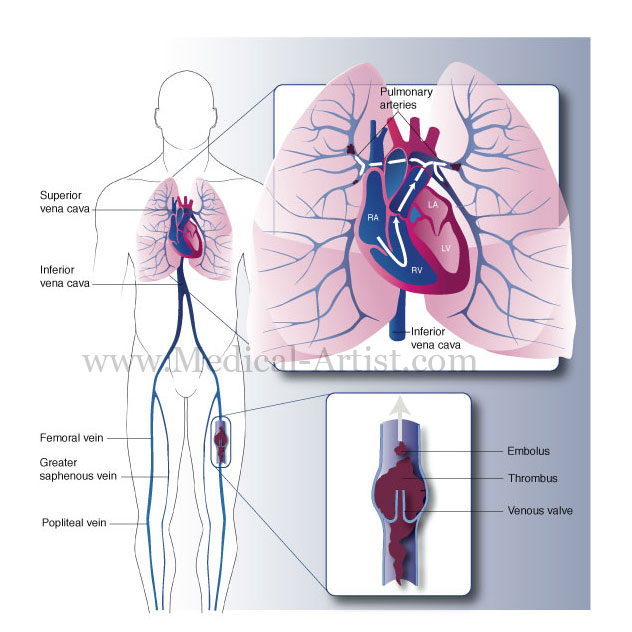 human heart and lungs diagram wiring diagrams img. Black Bedroom Furniture Sets. Home Design Ideas
